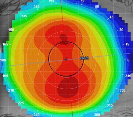 Corneal Topographer Wimbledon