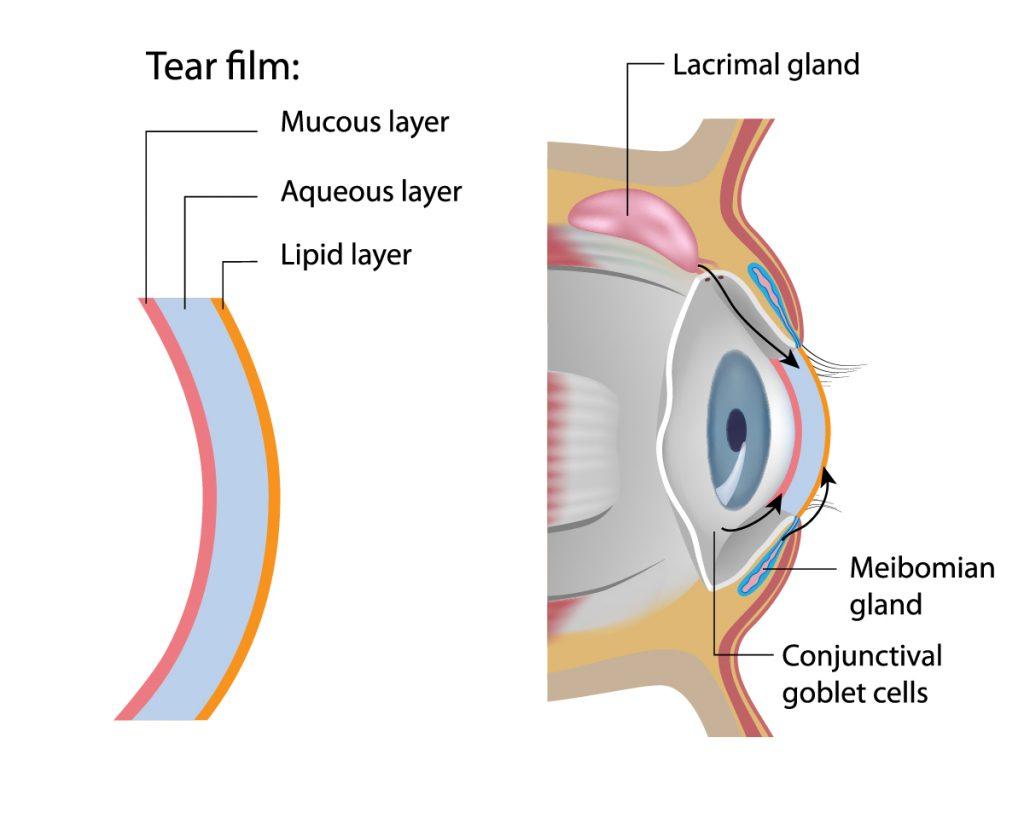 dry eye clinic wimbledon