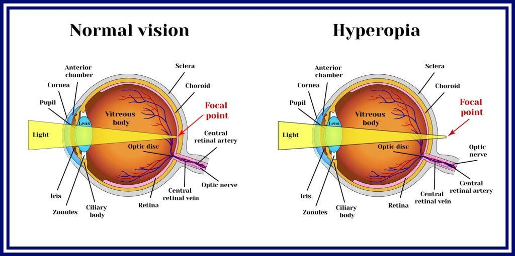 Keratoconic Lenses Wimbledon