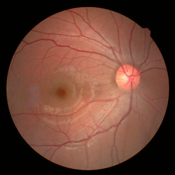 wimbledon retinal imagery services